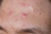 Stirn mit unreiner Haut und Pickel